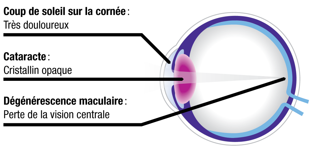 98570b3922f117 Maxivue   verres-solaires   lunettes  Suisse romande